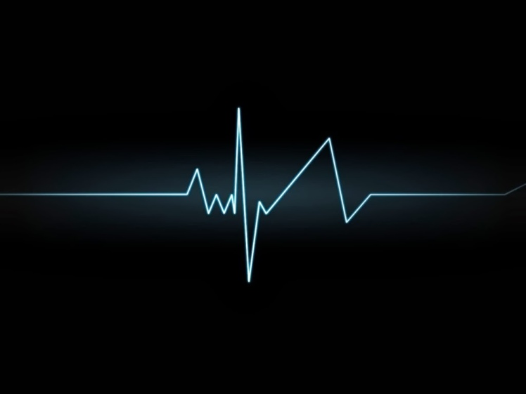 heartbeat+graph,+rhythmic+